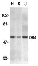 GTX74228 - CD261 / TRAILR1
