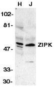 GTX74277 - DAPK3 / ZIPK