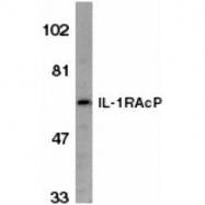 GTX74354 - IL1RAP