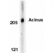 GTX74377 - Acinus / ACIN1
