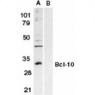 GTX74385 - Bcl-10
