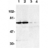 GTX74386 - TNFRSF21 / Death receptor 6 (DR6)