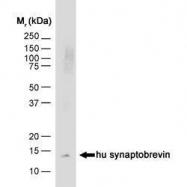 GTX74874 - VAMP-1 / Synaptobrevin-1