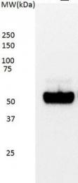 GTX75255 - TP53 / p53