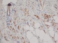 GTX75364 - Progesterone receptor