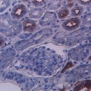 GTX75524 - CD227 / Mucin-1 / MUC1