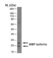 GTX76114 - Myelin Basic Protein
