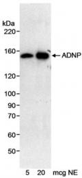 GTX77627 - ADNP