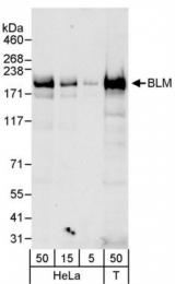 GTX77630 - BLM