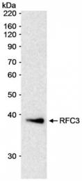 GTX77639 - RFC3 / RFC38