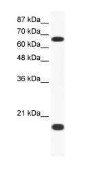 GTX77675 - Cullin 1