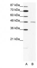 GTX77687 - Acetylcholine receptor delta subunit