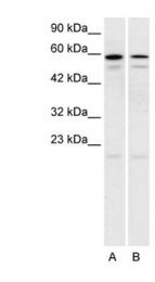 GTX77700 - Serotonin receptor 2C (HTR2C)
