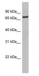 GTX77762 - NRF1