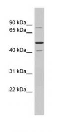 GTX77766 - SSRP1 / FACT80