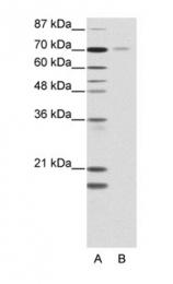 GTX77771 - NR2C1