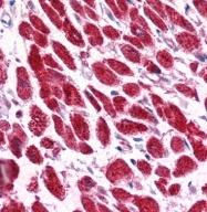 GTX77812 - Vacuolar-sorting protein SNF8