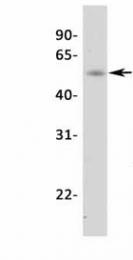 GTX77813 - Steroidogenic factor 1