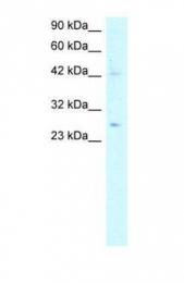GTX77828 - Adiponectin