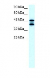 GTX77830 - Acetylcholinesterase