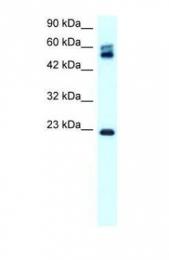 GTX77832 - Claudin-8 / CLDN8
