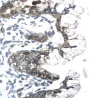 GTX77843 - Prohibitin / PHB