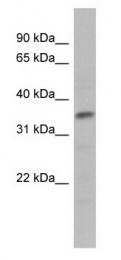 GTX77867 - Myogenic factor 5 (MYF5)
