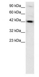 GTX77876 - HNF1 beta / TCF2