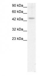 GTX77902 - Calreticulin