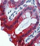 GTX78240 - Cytokeratin 18
