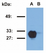 GTX78393 - HLA class II DR beta 1 / HLA-DRB1