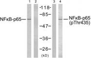GTX78994 - RELA / NF-kB p65