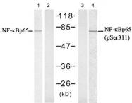 GTX78995 - RELA / NF-kB p65