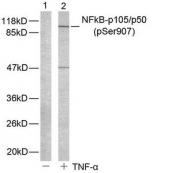 GTX78998 - NF-kB p105 / p50