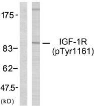 GTX79046 - CD221 / IGF1R