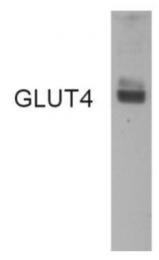GTX79317 - GLUT4 / SLC2A4