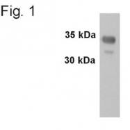 GTX79323 - Synaptophysin / SYP