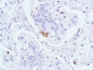 GTX79418 - Chromogranin A