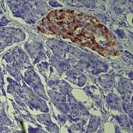 GTX79432 - Chromogranin A