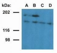 GTX79859 - Ubinuclein-1 (UBN1)