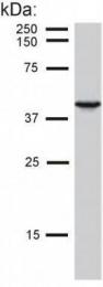 GTX80226 - Cytokeratin 19