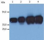 GTX80248 - Cytokeratin 19