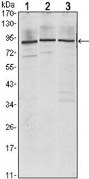 GTX80413 - IGF2BP3 / IMP3