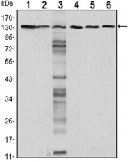 GTX80415 - CD324 / Cadherin-1