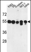 GTX80567 - Protein phosphatase 1H / PPM1H