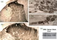 GTX80747 - Neurotensin receptor  1