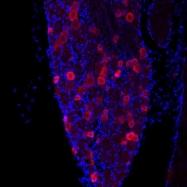 GTX80798 - TRPV1 / Vanilloid receptor 1