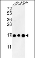 GTX80943 - Histone H3.1t