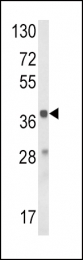 GTX81144 - Hydroxyacid oxidase 1 / HAOX1