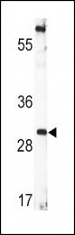 GTX81237 - BDNF